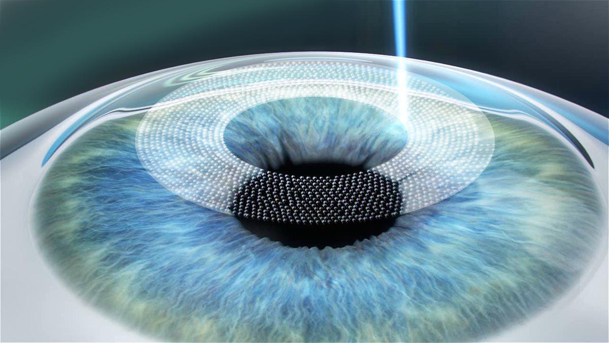 Bij de FemtoSecondLASIK behandeling geeft de laser zachte pulsen af die kleine gasbelletjes creëren. Deze belletjes vormen een tussenruimte die het weefsel daaromheen zoveel mogelijk ontziet - Worldeye