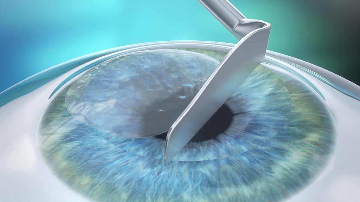 Bij de LASEK behandeling schuift de Worldeye specialist het epitheel alleen opzij. Vervolgens bewerkt hij het stroma.