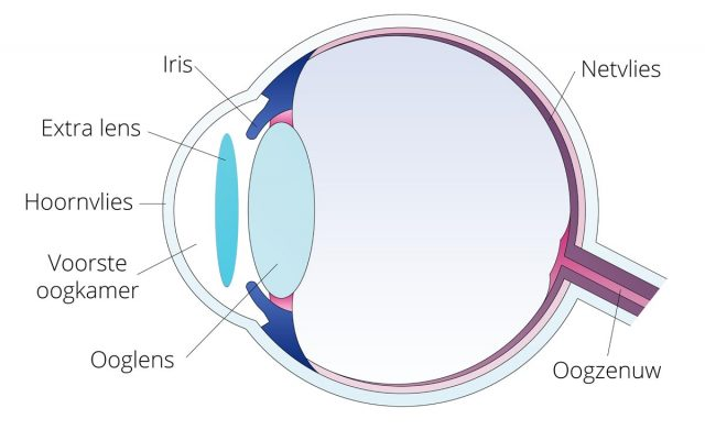 Lensimplantaat bij Worldeye, er wordt een extra lens geplaatst in de voorste oogkamer.