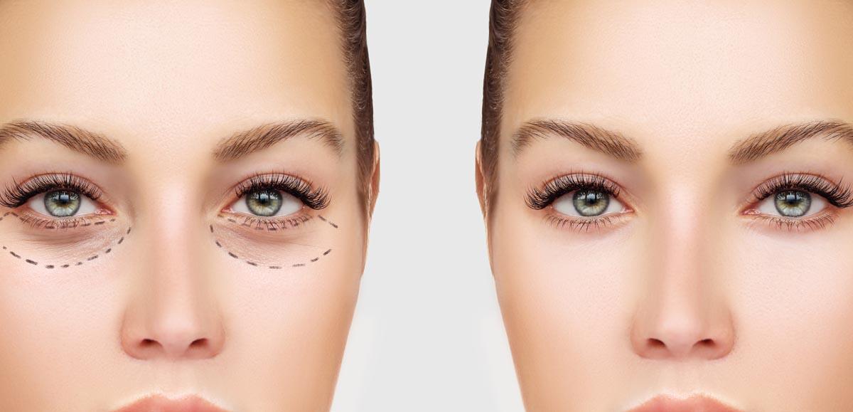 Een ooglidcorrectie is een relatief kleine ingreep met een mooi zichtbaar resultaat. U krijgt een meer energieke en open uitstraling - Worldeye